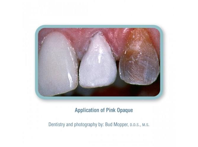 Renamel Pink Opaker